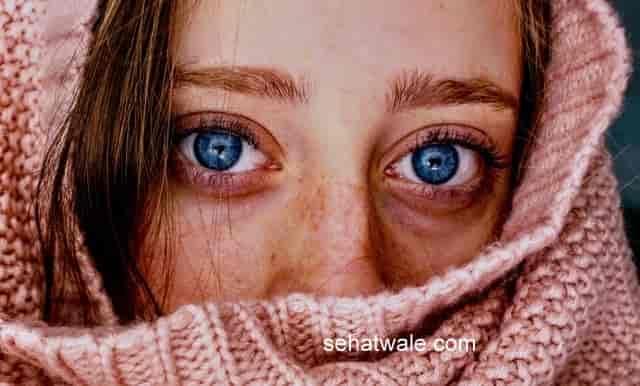 चेहरे की झाइयां( पिगमेंटेशनमेलाजमा )के कारण,बचाव,घरेलू उपाय
